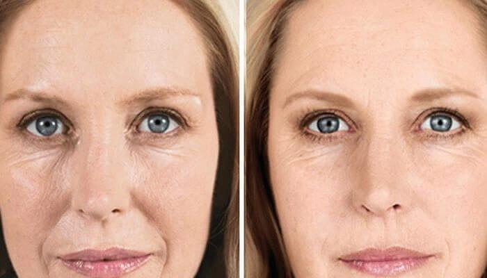 две ялупро фото после процедуры опытные увлеченные